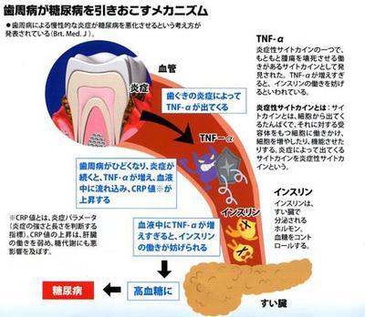 歯周病が糖尿病を引き起こすメカニズム.jpg