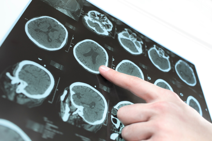 CT scan of the patient