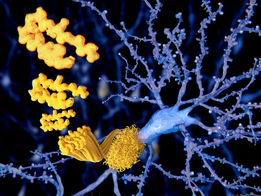 The beta amyloid peptid, amyloid plaques, Alzheimer disease