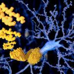アミロイドβが認知症の原因…とは断言できない理由と溜めない方法