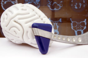 Figure of human brain with neurologic hammer on a background of spiral computer tomography (SCT) or magnetic resonance tomography (MRT) picture close up. Idea for diagnostics in neurology