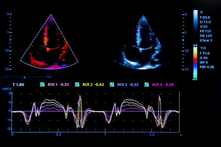 Colourful image of homan heart ultrasound monitor