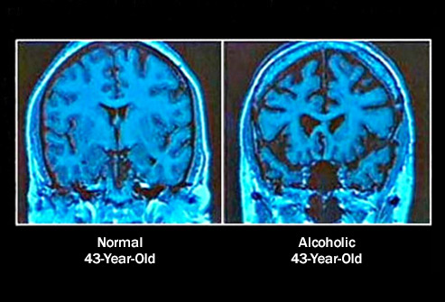 493ss_science_source_rm_normal_vs_alcoholic_brain