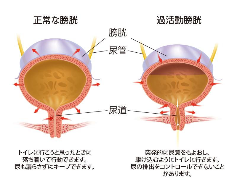 over-active-bladder