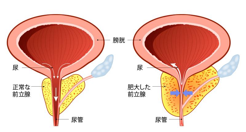 prostatic-hyperplasia