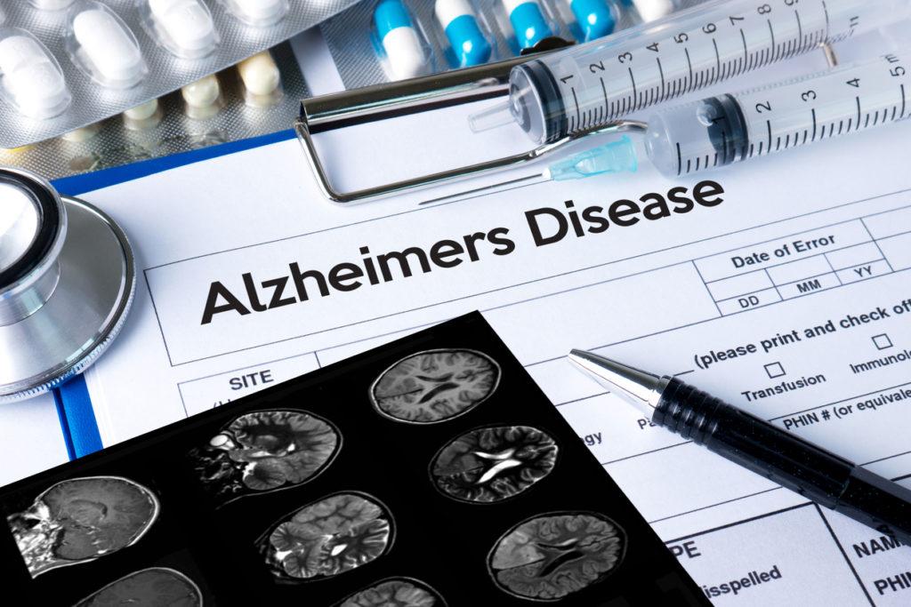 フランス厚生省が抗認知症薬を医療保険から除外!? 専門医の考察は