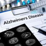Alzheimers Disease concept , Brain degenerative diseases Parkin