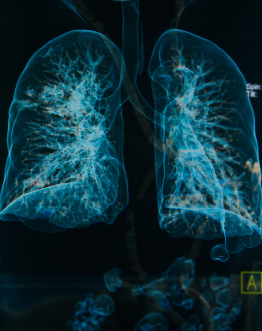 chest X-rays lungs 3d image