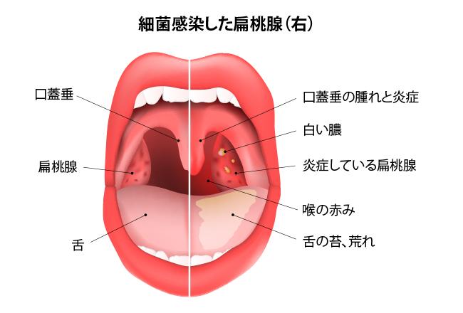 喉 の 奥 白い でき もの