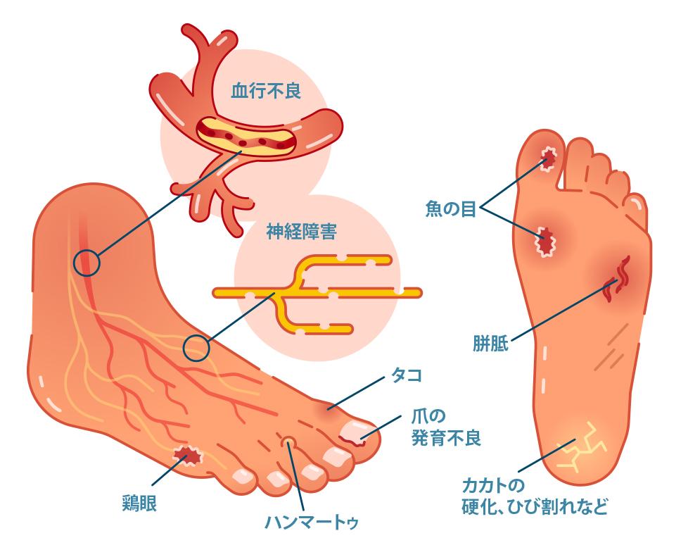 糖尿病 足 の しびれ 改善
