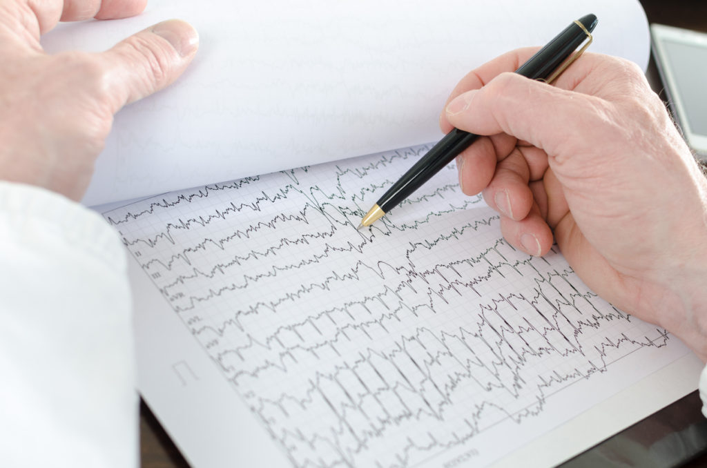 Doctor analyzing an electrocardiogram