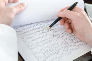 Doctor analyzing an electrocardiogram