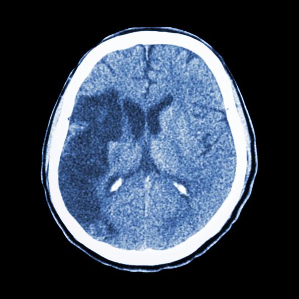 CT brain : show Ischemic stroke