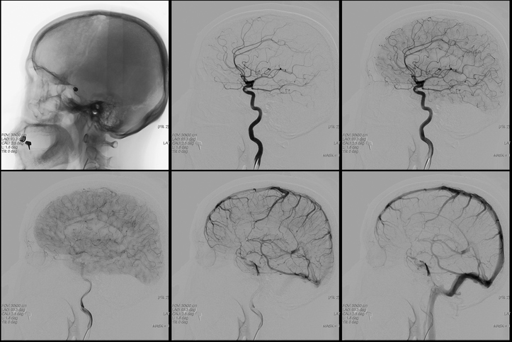 Brain angiography