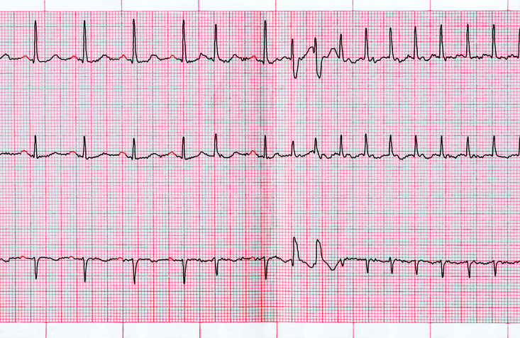 ECG with supraventricular extrasystole and short paroxysm of atrial fibrillation