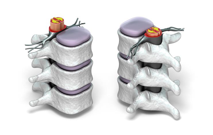 Human spine in details: Vertebra, bone marrow, disc and nerves.