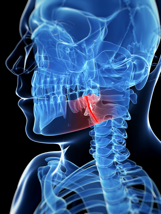 Blue X-ray silhouette of a broken jaw