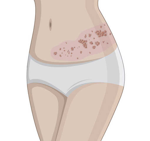 Illustration of Herpes zoster