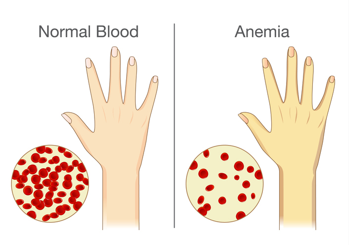 The effect of Anemia on skin blood flow in human.