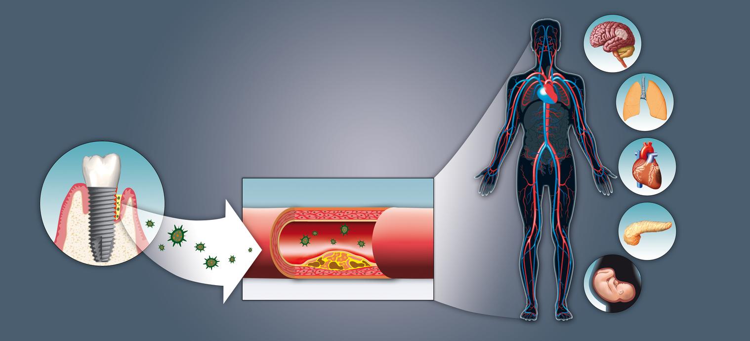 Impact of Periimplantitis on body