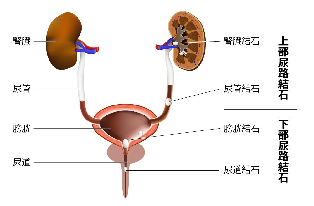 場所 尿 痛み 管 結石