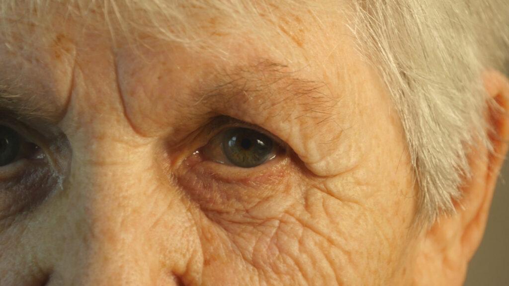 高齢者の「まぶたが下がる」を治す方法は?重症筋無力症を医師が解説