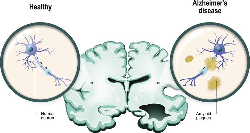 Alzheimer's disease. Neurons and brain