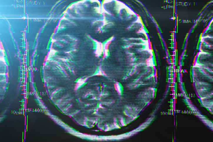X-ray or MRI brain scan with glitch effect. Abstract concept of Alzheimer disease and other health problems with head, brain, memory and mental problems