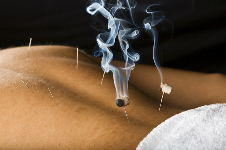 Burning moxa herb on needles stuck to skin