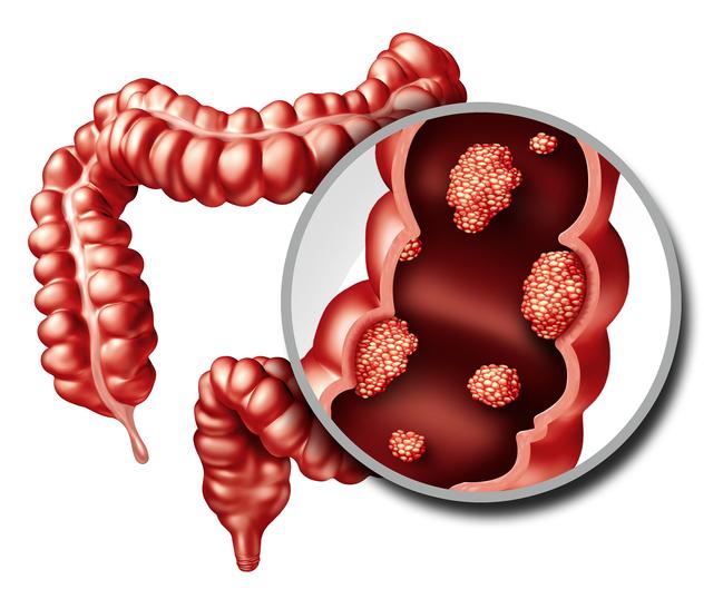 Colon Cancer Concept