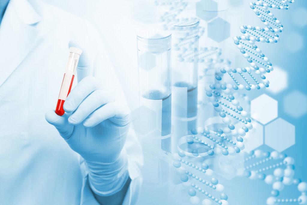 一滴の血液によるアルツハイマー型認知症の測定が救世主にならない理由