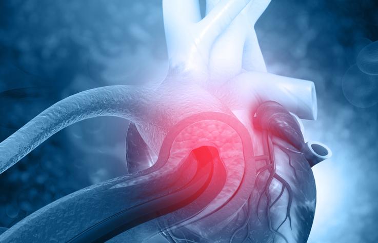 Human heart angioplasty
