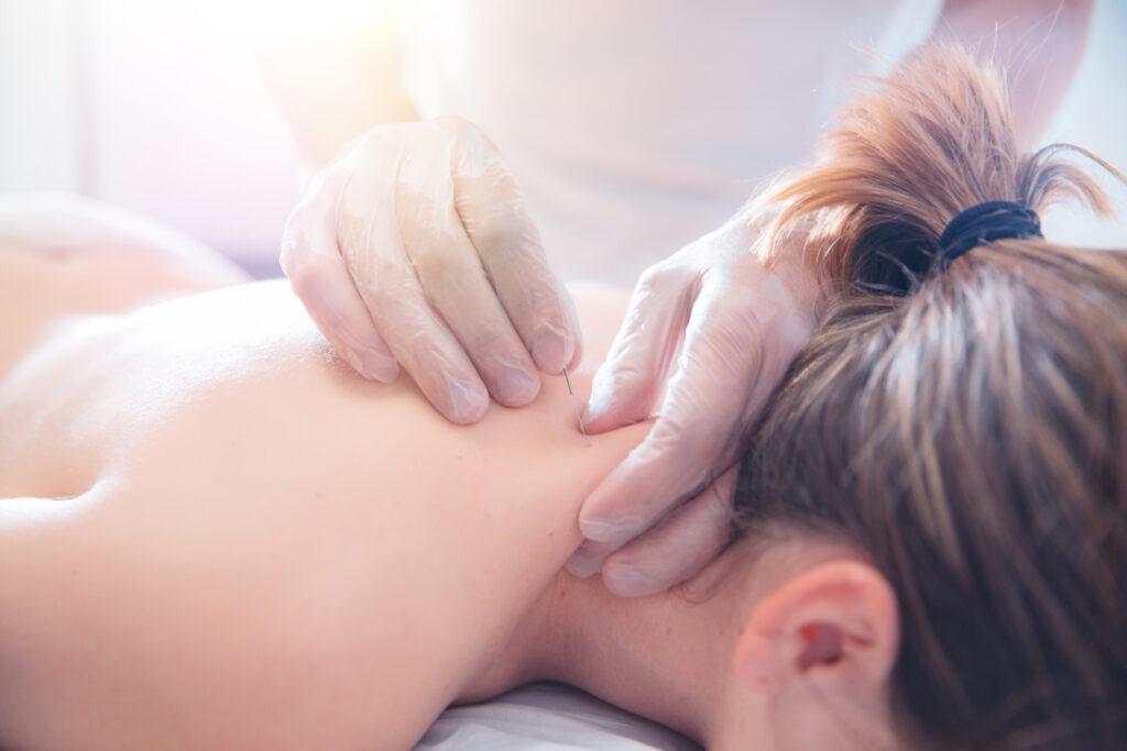 カリフォルニアで保険適用!鍼灸が海外で効果が認められる5つの理由
