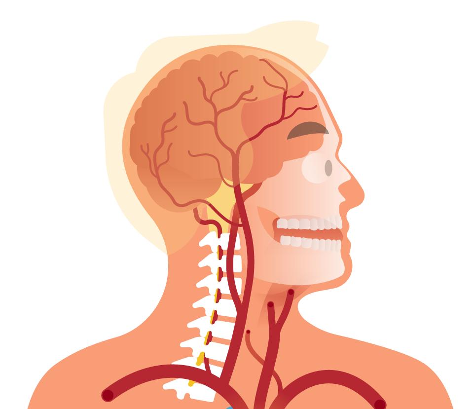 brainartery