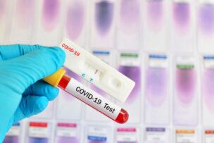 Cassette rapid test for COVID-19