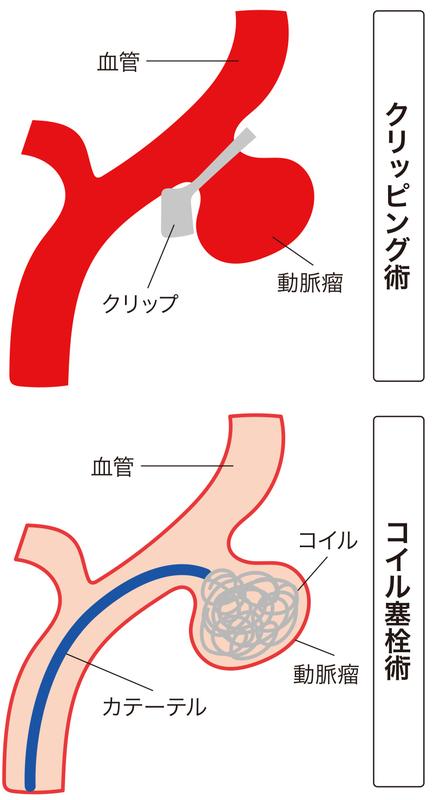 脳動脈瘤の治療方法
