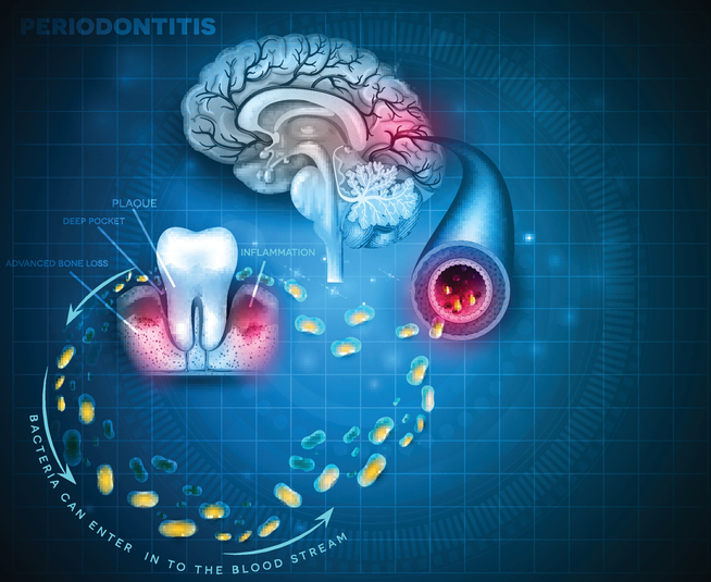 Dental inflammation