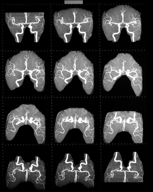 mra of brain
