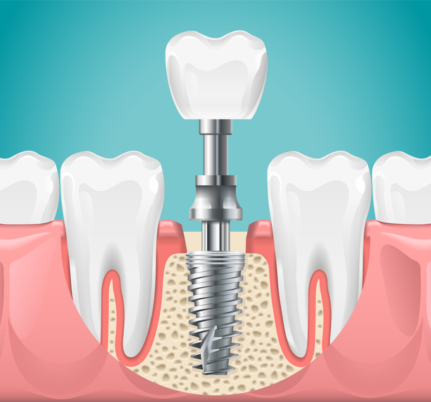 Dental surgery. Tooth implant cut vector illustration. Healthy teeth and dental implant, stomatology poster