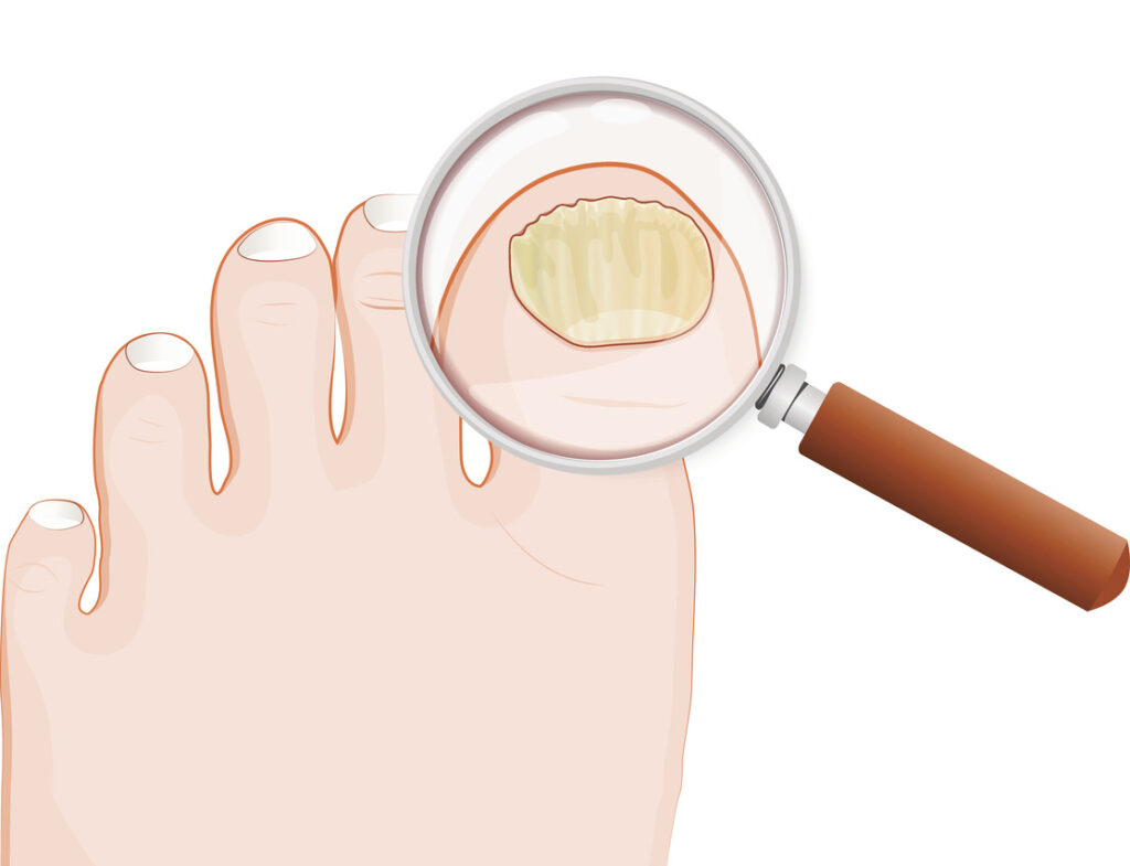 fungal nail infection. Onychomycosis or tinea unguium