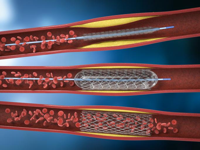 Balloon angioplasty procedure