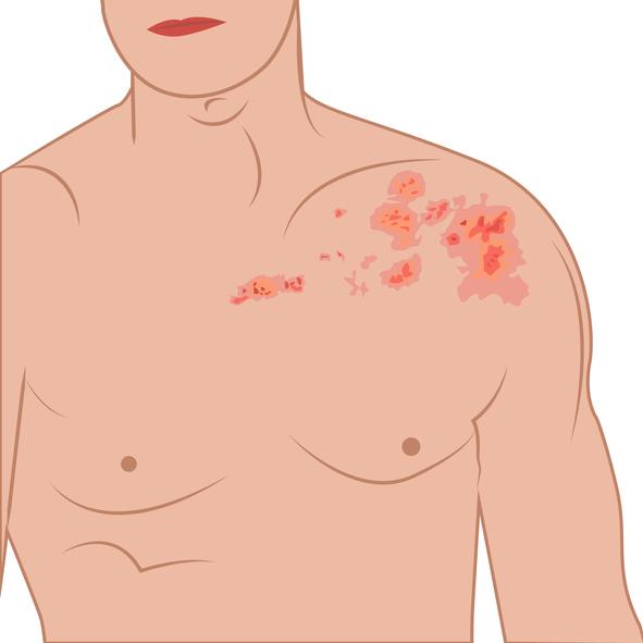 Shingles on a man body vector illustration