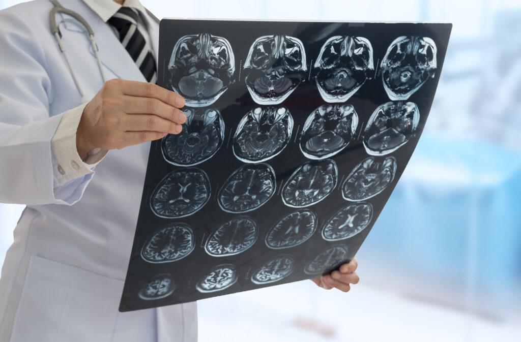 頭部CT検査とは・CT撮影が有用な疾患と不要な疾患を脳神経内科専門医が解説