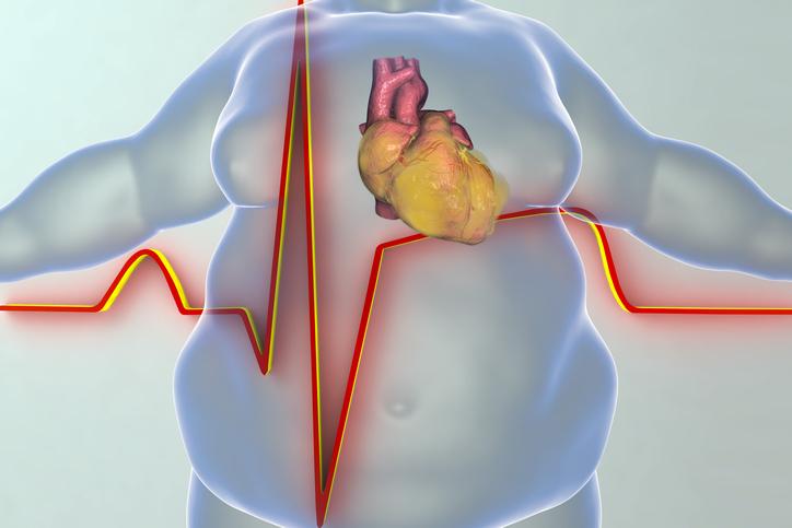 Heart disease in obesity person
