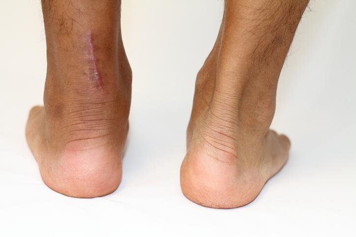 operation scar of Achilles tendon rupture